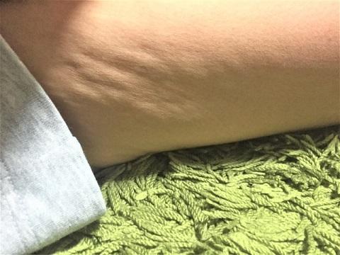 皮下脂肪に老廃物が付いた塊がセルライトの正体