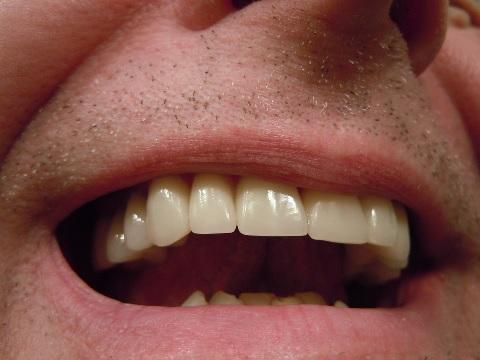 虫歯の痛みは大人になると感じにくくなる理由