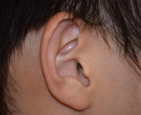 先天性耳瘻孔は耳の前方に現れるのが特徴がある