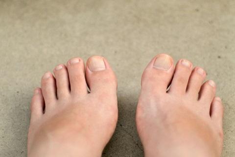 足の小指をよくぶつける人は運転に注意すべし