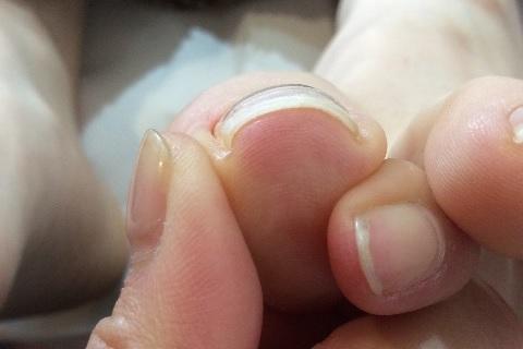 転倒しやすくなる原因は足の親指の巻き爪だった