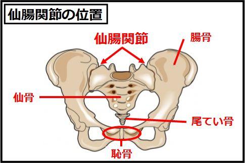 仙腸関節のロックでおこる靭帯損傷がぎっくり腰