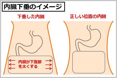 内臓脂肪レベルと内臓下垂