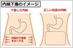腹横筋が内臓下垂を防ぐ