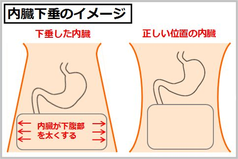 腹横筋と腹斜筋が内臓下垂を解消する